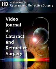 Video Journal of Cataract & Refractive Surgery